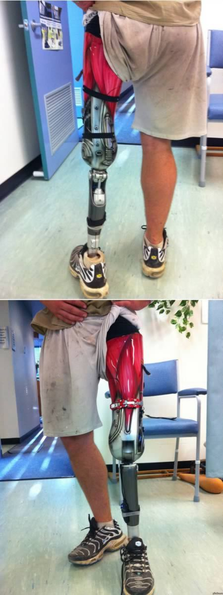 Coolest Prosthetic Limbs